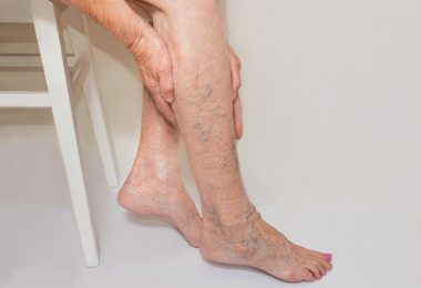Are You at Risk for Developing Varicose Veins?