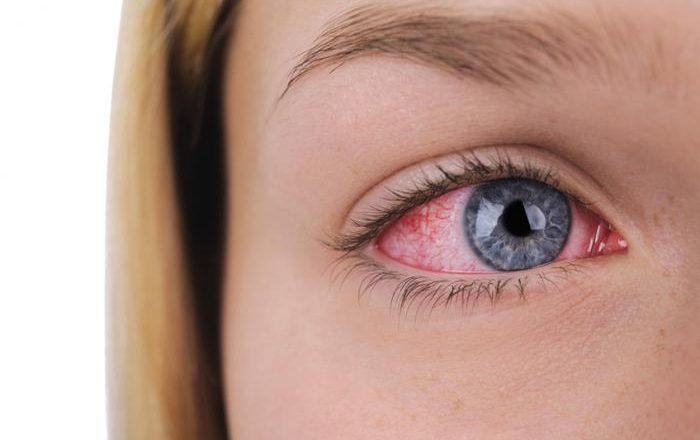 Know the Major Causes of Dry Eyes to Treat the Symptoms of Dry Eye Syndrome!
